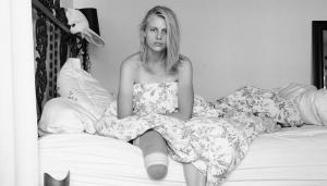 Vrouw die rechterbeen verloor door 'tamponziekte' is nu ook linkerbeen verloren