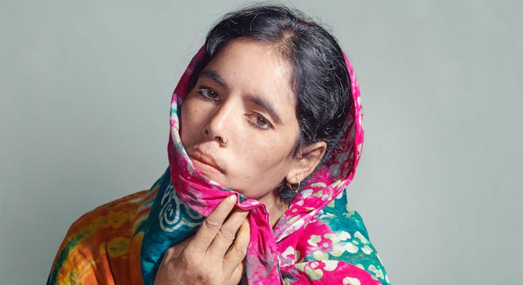 Masuma werd op haar twaalfde uitgehuwelijkt: 'Mijn benen waren helemaal verlamd en van onderen was ik totaal kapot'