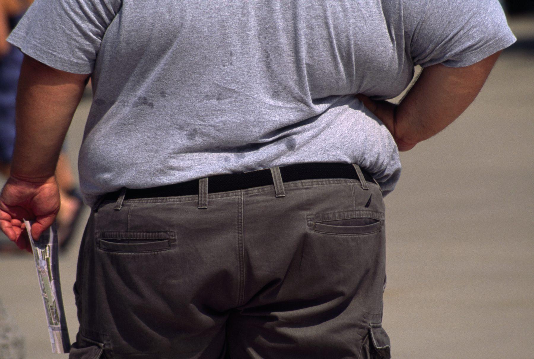Zo is het om morbide obesitas te hebben in de Verenigde Staten