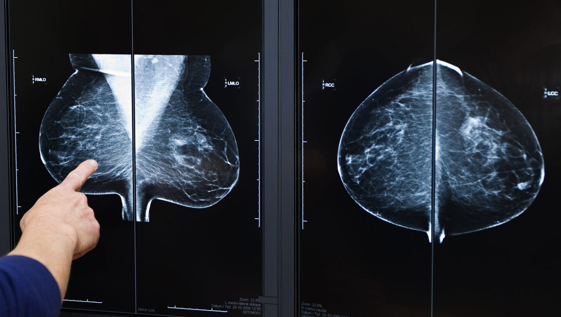 borstkanker-borstkankerscreening-borstkankeronderzoek-personeelstekort