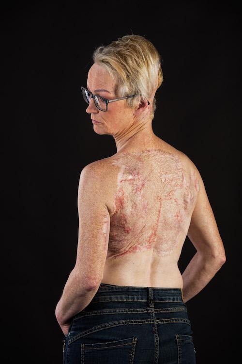 Marga litteken brandwondendag-