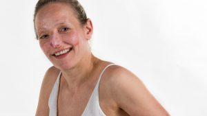 Thumbnail voor Brandwondendag: 10 x verhaal en beeld van dappere mensen met littekens