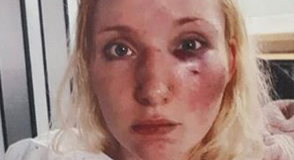 'Temptation Island's Laura deelt foto's na mishandeling door boze kijkers