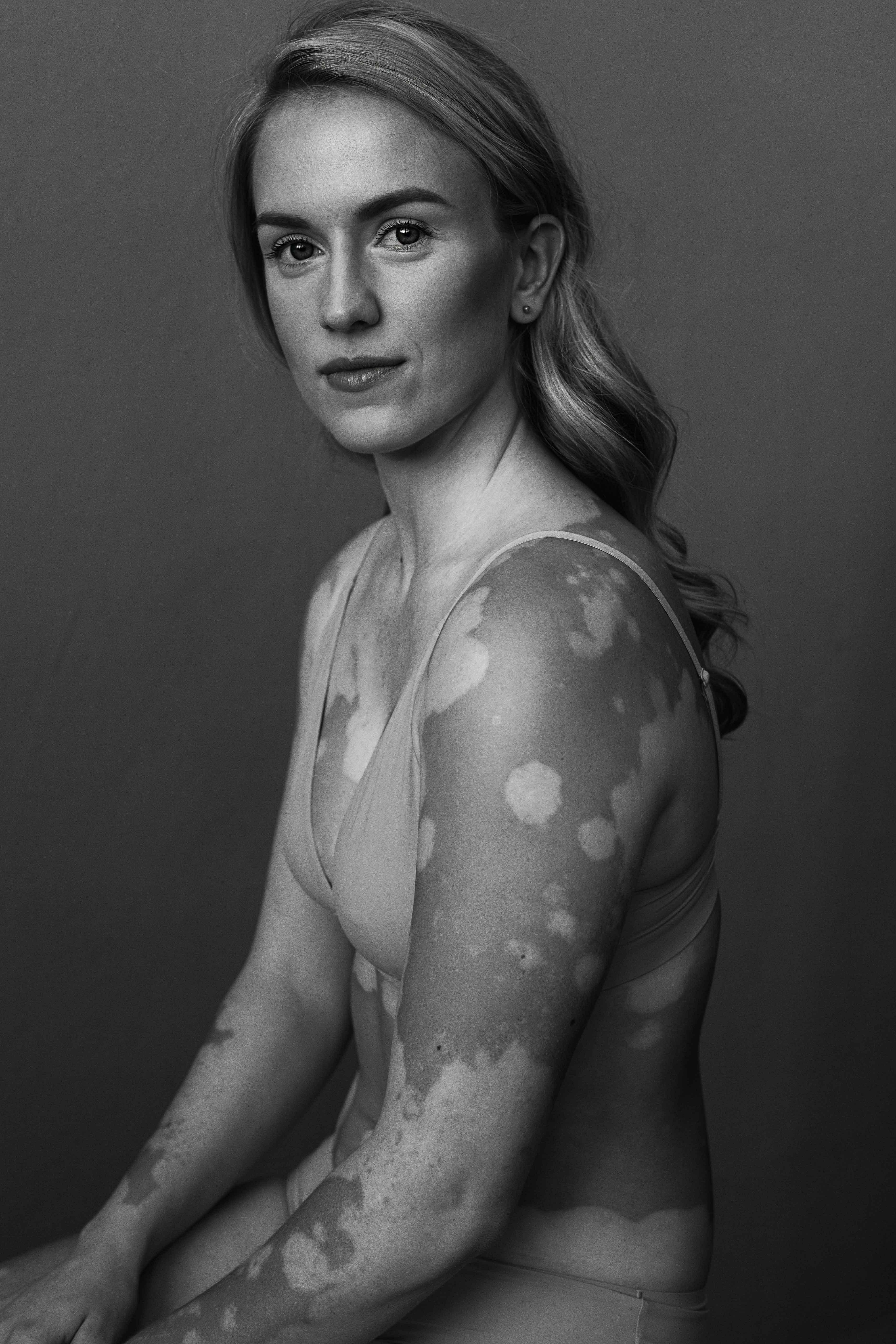Anna_Elisabeth-van-Aalderen_Vitiligo
