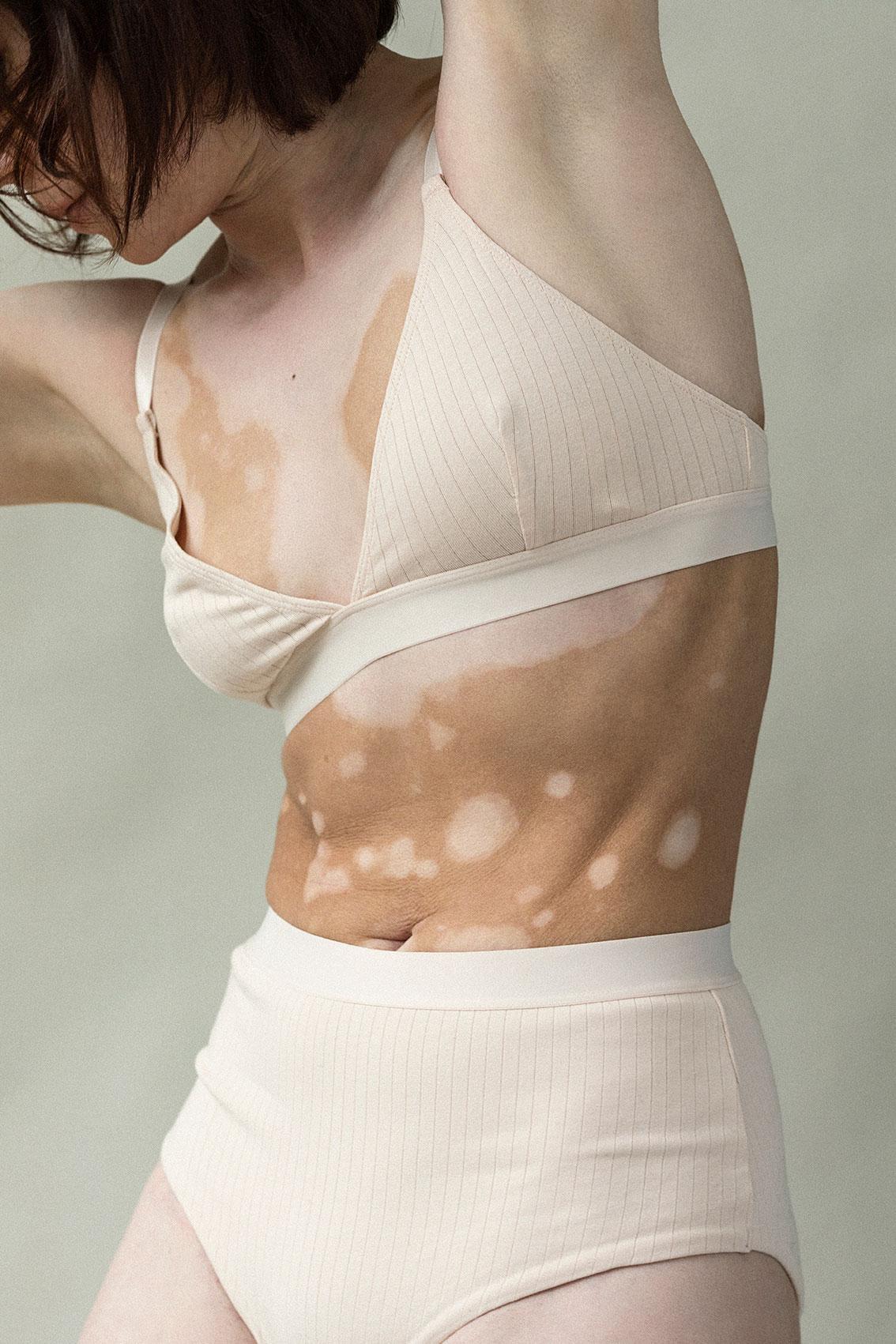 Emilie_Elisabeth-van-Aalderen_vitiligo_3