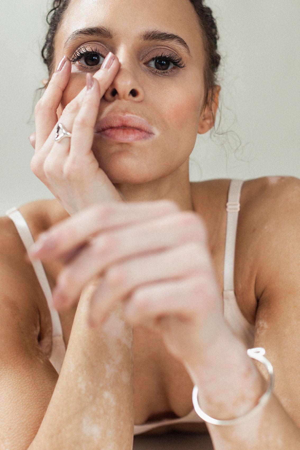Natalie_Elisabeth-van-Aalderen_vitiligo_1