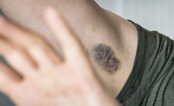 Jan werd mishandeld door zijn vrouw: 'Ik schaamde me rot'