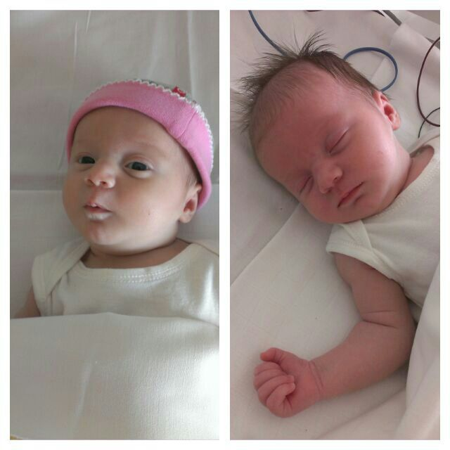 Nova voor en na de bloedtransfusies