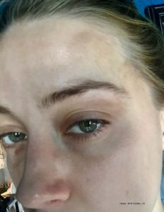 Amber Heard mishandelt
