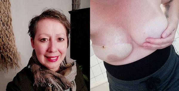 Borstkanker borstreconstructie Marie-Jose
