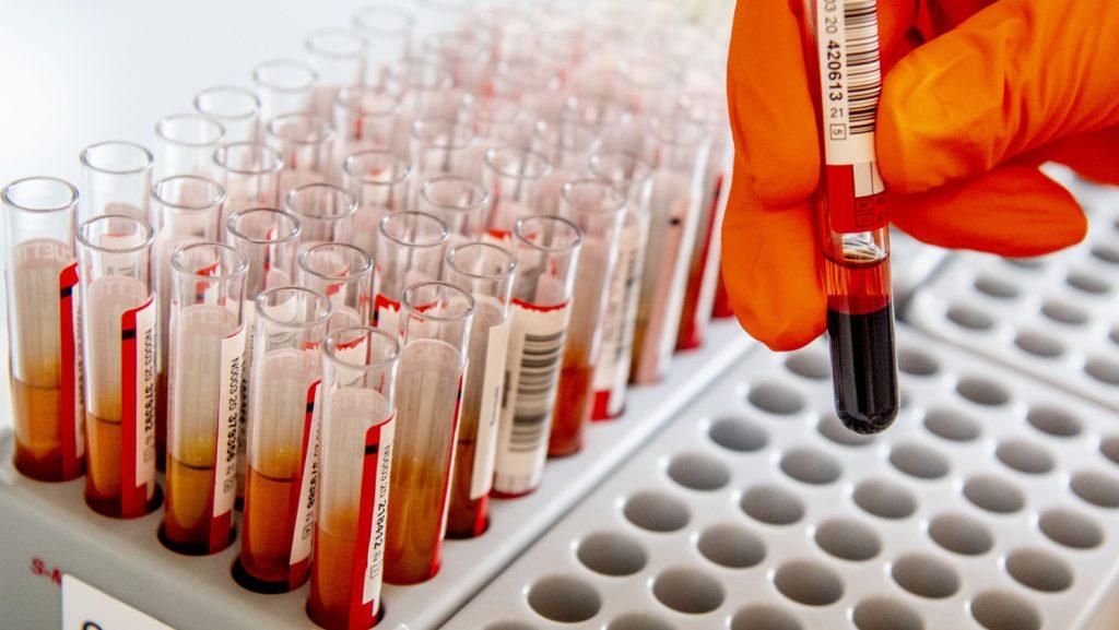 'Homoseksuele mannen moeten ook plasma mogen doneren'