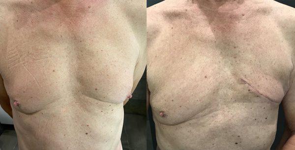 Fred borstkanker voor en na operatie