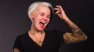 Silvana lijdt aan een zeldzame huidaandoening: 'Ik ben bedekt met schubben'