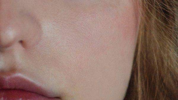 irene tumor diagnose neus