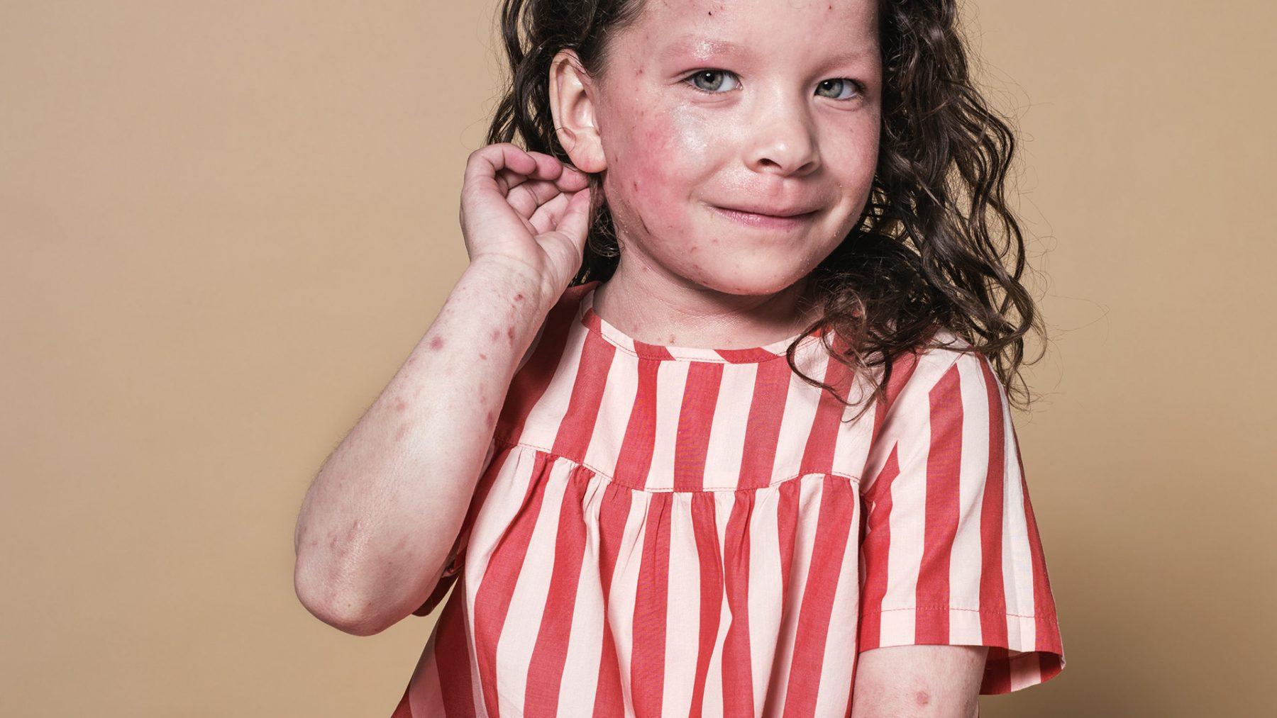 Elyssa (6)heeft eczeem: 'Ze verdraagt geen crèmes en gilt van de pijn'