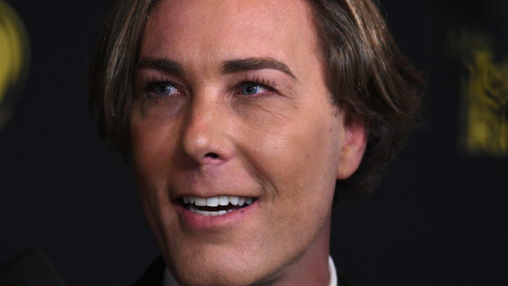 Rogier Smit showt nieuwe coupe na haartransplantatie: 'Lekker hè, je eigen haar'